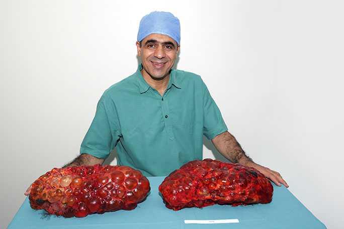 Worlds Largest Kidney